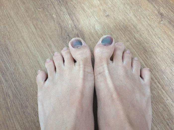 bruised-toes